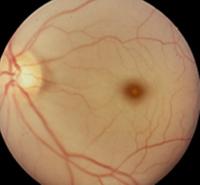 図3.網膜動脈閉塞症
