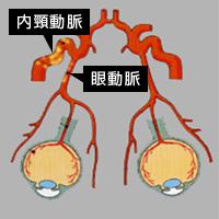 図5.内頸動脈、眼動脈閉塞の動脈硬化