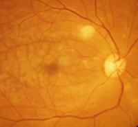 図6.眼虚血症候群